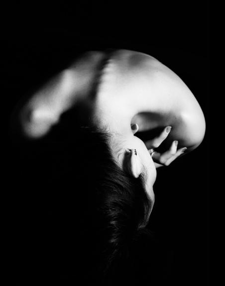 Mood Disorders and Bipolar Depression